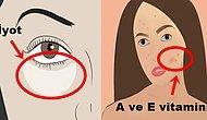 Yalnızca Aynaya Bakarak Vücudunuzda Hangi Vitaminin Eksik Olduğunu Anlayabileceğinizi Biliyor muydunuz?