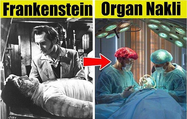 4. Organ ve doku nakli