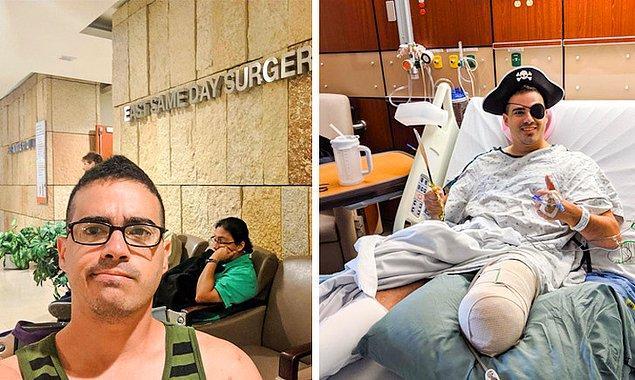 9. Tek bacağı kesilen adama sosyal medyadan yüzlerce kişi destek oldu:
