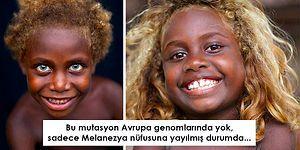 Tek Bir Mutasyonun Sebep Olduğu Benzersiz Güzellik: Dünyanın Tek Doğal Siyahi Sarışınlarıyla Tanışın!