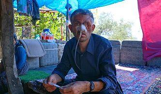 Doktor İhmali mi? Diş Ağrısı Şikayetiyle Gitti, Gözünü ve Yüzünün Bir Kısmını Kaybetti