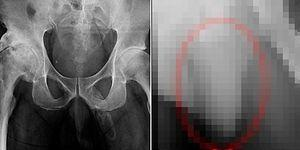 Diz Kapağındaki Ağrıdan Ötürü Gittiği Hastanede Çekilen Röntgenle Penisinde Kemikleşme Olduğunu Öğrenen Adam