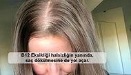 Kadınlarda Yoğun Saç Dökülmesinin Sebepleri ve Mutlaka Bilinmesi Gereken Önleme Yöntemleri