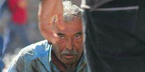 Ankara'da Kendisini Yakan Vatandaş: 'Adalet Beni Bitirdi'