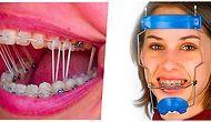 Mükemmel Dişlerle Büyümeyen Diş Telli Çocukların Izdırabını Derinden Hissedeceği 22 Fotoğraf