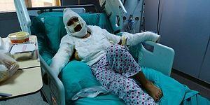 İstanbul'da Vahşet: Cezaevinden İzinli Çıkan Saldırgan, Eski Eşini Önce Bıçakladı Ardından Kızgın Yağ ile Yaktı