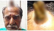 Kafasının Üstünde Yaklaşık 10 Santimetrelik Korkunç Bir Tümör Bulunan Yaşlı Adam