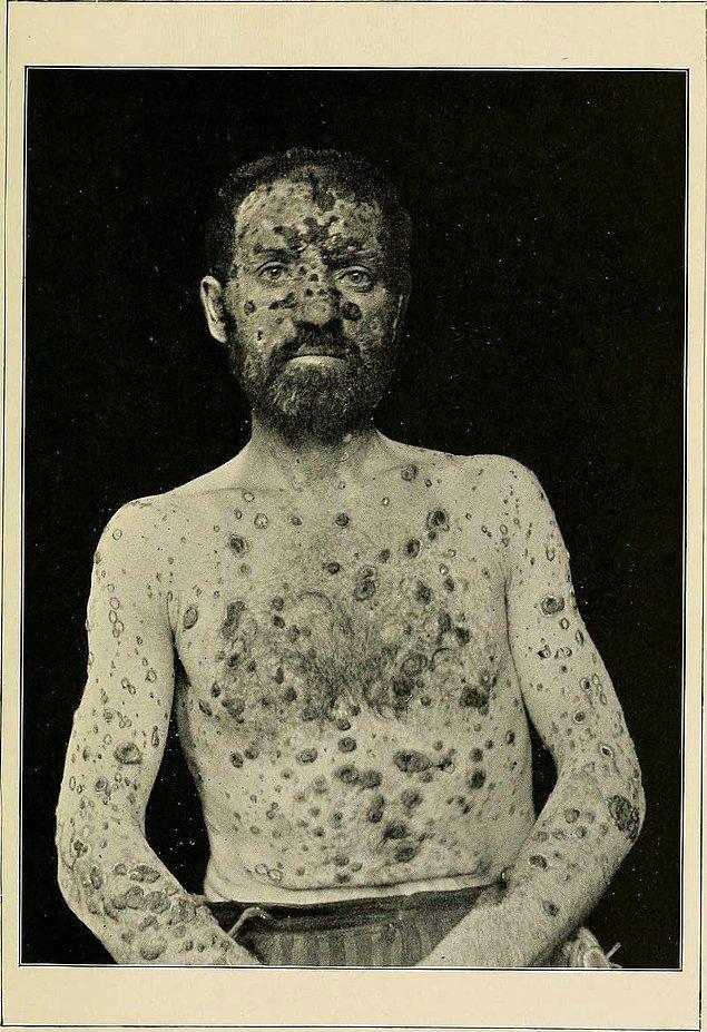 4. Sifiliz, düşünüldüğünün aksine sadece geçmiş zamanlarda rastlanan bir hastalıktır.