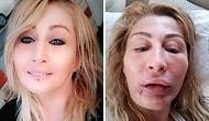 Bir Estetik Faciası Daha: Tanınmaz Hale Gelen Kadın Alt Dudağını Kaybetti