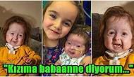 Dünya Üzerinde Sadece 2 Yaşındaki Isla Kilpatrick-Screaton'ın Sahip Olduğu 'Benjamin Button Hastalığı'