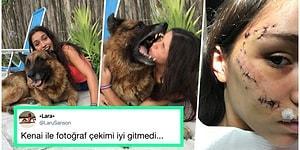 Köpek Tarafından Isırıldığı Anı ve Kesiklerini Paylaşan Genç Kadına Aynı Kaderi Paylaşan Kişilerden Gelen Cevaplar