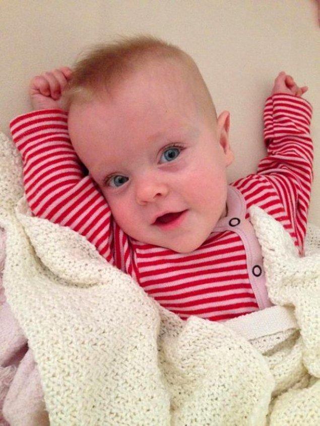 Şimdi tamamen sağlıklı bir bebek olan Edie,