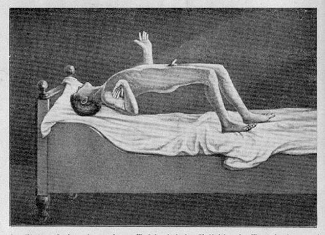 Eski dönemlerde rahatsızlık ve semptomları bilinmediği için öldü sanılan insanların, gömülerek gerçek ölüme gönderilmesiyle sonuçlanabilmekteydi.