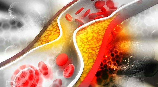 2. Peliferik arter hastalığı