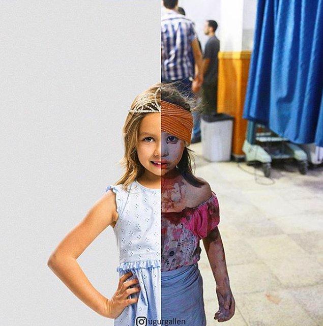 8. 2015'te Suriye hükümet güçlerinin bombardımanı ve hava saldırıları sonrasında, hastanede tedavi görmeyi bekleyen bir kız çocuğu.
