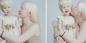 12 Yıl Arayla Doğan Albino Kız Kardeşlerden Farklı Olmanın da Güzel Olduğunu Kanıtlayan Fotoğraflar