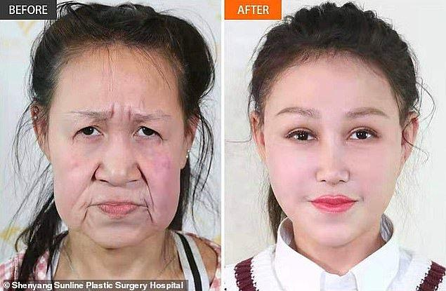 Dr. Shi Lingzhi, hastanenin başhekimi, Feng'in cildindeki fazla deriyi aldı. Diğer doktorlar ise burnunu, kaşlarını ve ağzını tekrar şekillendirdiler.