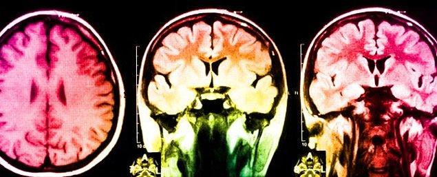 Reduplikatif paramnezi, yanılgısal misidantifikasyon sendromlarından biridir ve nadir görünmesine rağmen sıklıkla beyin hasarı ile ilişkilendirilmektedir.