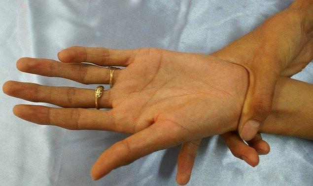 Peki, nedir bu Marfan sendromu? Marfan sendromu, vücudun bağ dokusunu etkileyen genetik bir bozukluk...