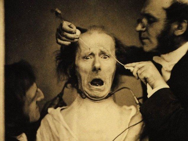 11. Fransız nörolog Duchenne de Boulogne'nin medikal çalışmaları sırasında çekilen fotoğraf: