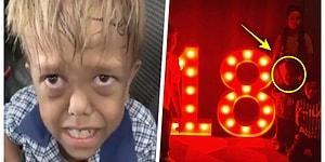 Gördüğü Zorbalıktan Dolayı Kendini Öldürmek İsteyen Quaden Bayles'in 18 Yaşında Olduğu İddia Edildi!
