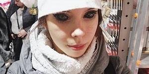 Hayran Olduğu Rapçiye Benzemek Umuduyla Gözlerine Dövme Yaptırdığı İçin Kör Olan Kadın