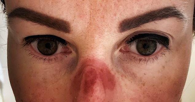 2. Ve şimdi, yani bir ay sonra sağlık çalışanları suratlarının ne kadar kötü hale geldiğini paylaşmaya devam ediyorlar.