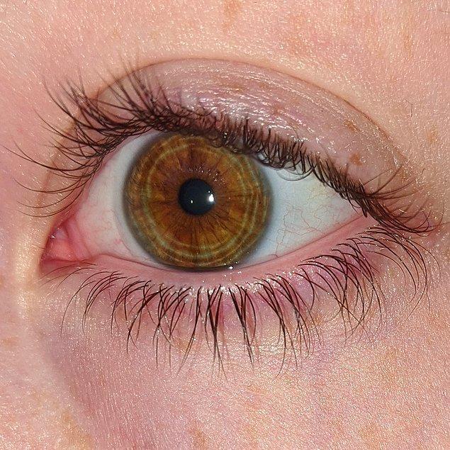 """1. """"Gözümün irisinde halkalar var."""""""