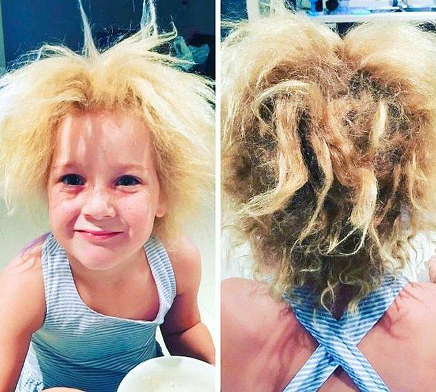 11. İnanılmaz nadir görülen taranamayan saç sendromu