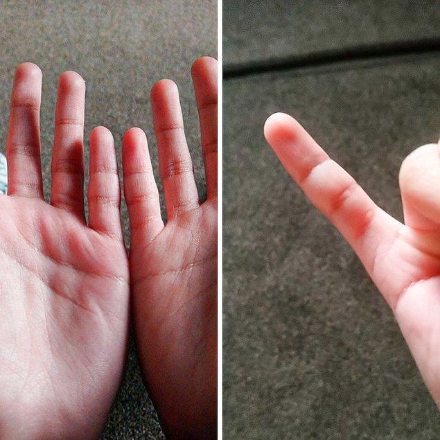 """2. """"Sağ serçe parmağımda ekstra bir boğum var."""""""