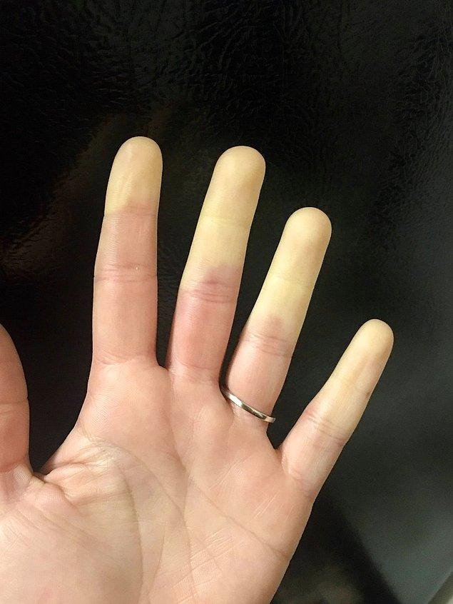 """5. """"Kan akışı olmadığı için parmaklarımın yarısı bu şekilde görünüyor."""""""