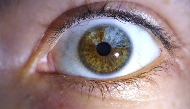 """11. """"Gözümün bir kısmının mavi görünmesine neden olan heterokromi isimli bir rahatsızlığım var."""""""