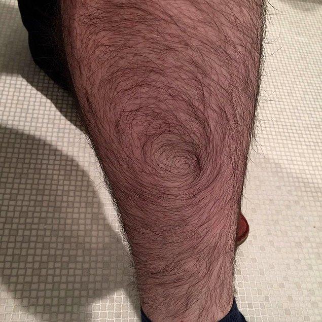 """18. """"Bacak kıllarım spiral şeklinde uzuyor."""""""