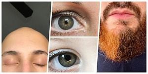 Vücutlarında Taşıdıkları Eşsiz Farklılıklarla Güzellik Kalıplarını Yıkmış 19 Kişi