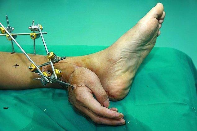 3. Bu da doktorların, hastanın ayağında aşılayarak iyileştirdikleri bir el. Bu şekilde bir ay kaldıktan sonra kola geri dikilmiş.