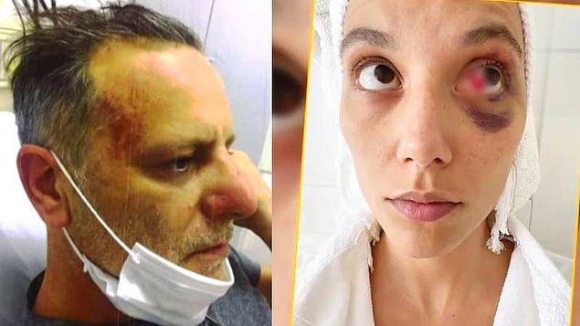 8. Ozan Güven'den şiddet gördüğü söylenen Deniz Bulutsuz'un avukatı, konuyla ilgili açıklama yaptı!