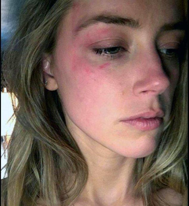 Amber Heard'ün ise Johnny Depp ile ilgili başka iddiaları da vardı. Heard, Depp'in kendisine telefonda köpek gibi uluduğunu ve daha sonra yüzüne vurduğunu söyledi.
