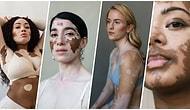 Çektiği Karelerle Vitiligo Hastası Kadınların Güzellik Kalıplarını Yıktığını Kanıtlayan Yetenekli Fotoğrafçı Elisabeth Van Aalderen ile Tanışın!