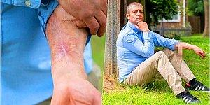 Yaşadığı Enfeksiyondan Sonra Çeşitli Gecikmeler Nedeniyle 4 Yıldır Kolunda Penisiyle Yaşamak Zorunda Kalan Talihsiz Adam