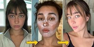 Dikkat, Evde Denemeyin: TikTok İle Popüler Hale Gelen ve Dermatologların Kesinlikle Önermediği Güzellik Trendleri