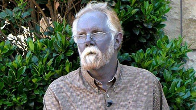 1. ABD'nin Kentucky eyaletinde nesillerdir mavi renk cilde sahip olan bir aile yaşamaktaydı. Bu ilginç ailenin, akraba evlilikleri ve methemoglobinemi adında nadir bir genetik hastalığın birleşimi sonucu mavi ciltlerini kazandıkları düşünülüyor.