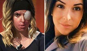 Ayrıldığı Sevgilisi Tarafından Asitli Saldırıya Uğrayan Güzellik Kraliçesi: Gessica Notaro