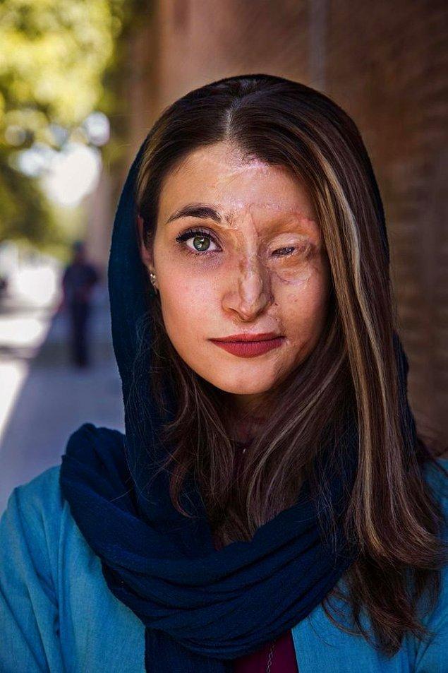 İşte asit saldırısı kurbanlarından birisi de Marziyeh Ebrahimi.