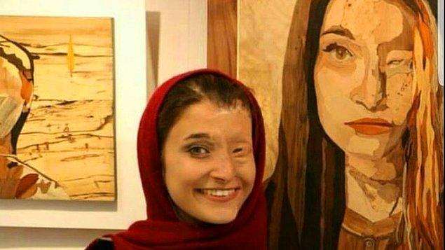 Bir diğer asit saldırısı kurbanı ise Massoumeh Attaie. Yüzünün yarısını işlevsiz bırakan acımasız saldırıyla ilgili hiçbir zaman adalet bulamayanlardan.