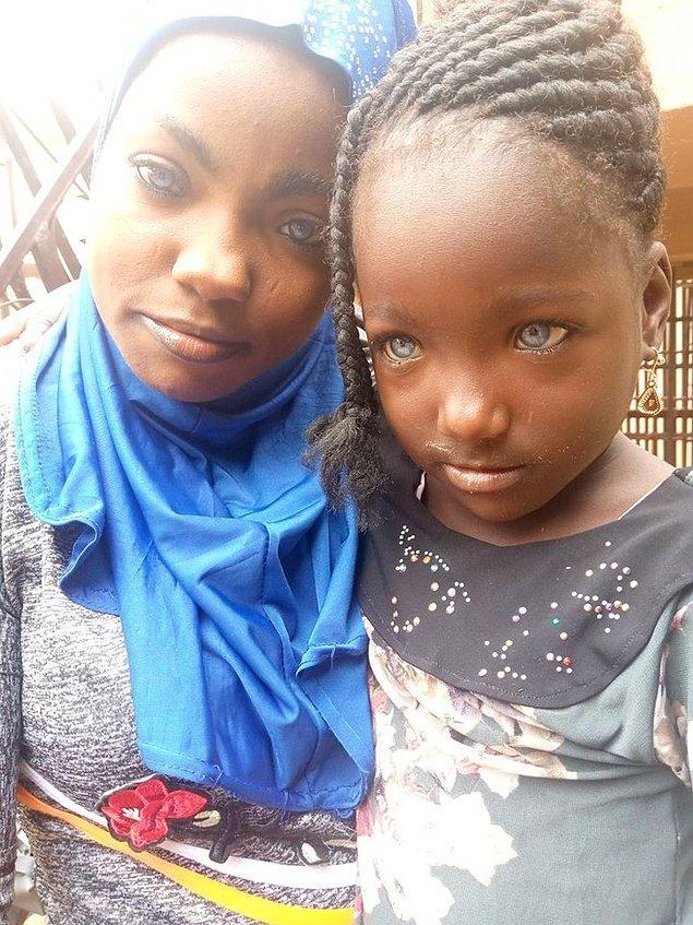 İki çocuk annesi Risikat, Nijerya ve Afrika'da nadir görülen mavi gözlerle çile çekmesine rağmen bu durumdan mutlu olduğunu dile getiriyor.