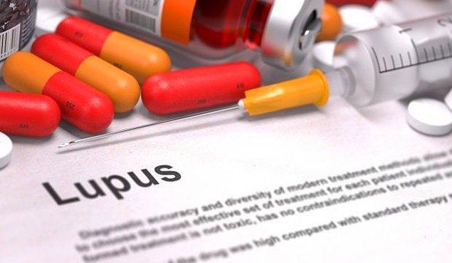 Aslında bu yazıda Lupus hastalığını değil, Lupus hastalarına karşı farkındalığı anlatacağız...