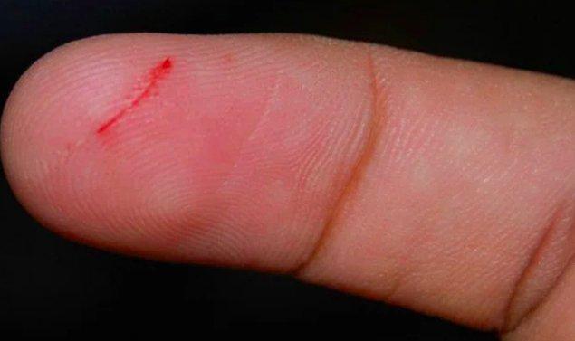 """14. """"Elime bıçak almadığım, keskin hiçbir şeyle uğraşmadığım halde parmaklarım:"""""""