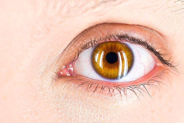 9. Lazerle göz ameliyatı geçirirken gözünüzün yanan kısımlarının kokusunu alabilirsiniz.