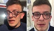 Otizmli Genci Öldüresiye Döven Saldırgana 6 Ay Hapis