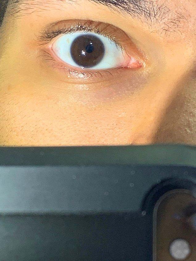 """13. """"Tam ortalanmamış bir gözbebeğim var."""""""